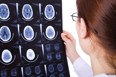 Causes Of Brain Injury