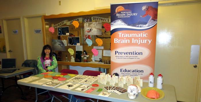 Northern Brain Association Community Development Info Booth